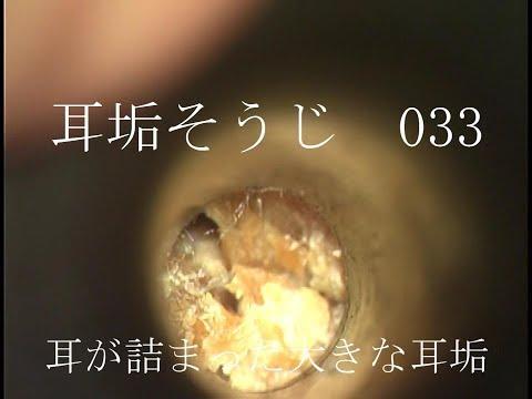 動画 耳垢