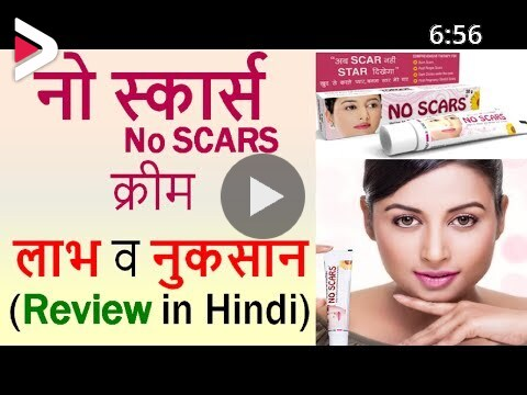 No Scars Cream Review In Hindi Use Benefits Side Effects
